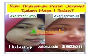 Testimoni Set Jerawat Shaklee By Ireach